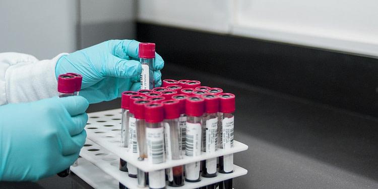 Tunisie : 1 décès et 58 nouveaux cas confirmés au Coronavirus
