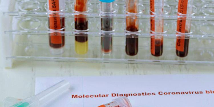 Tunisie: plus de 1.302 nouveaux cas de contamination en 24 heures